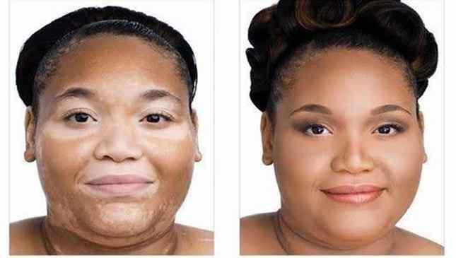 cura para vitiligo